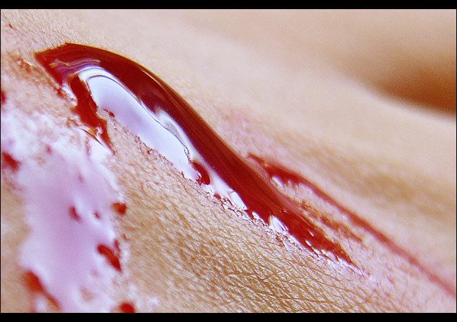 """фото """"skin & blood"""" метки: макро и крупный план, абстракция,"""